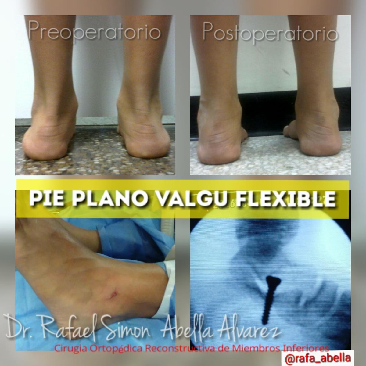 Dr rafael simon abella alvarez barquisimeto clinica idet for Operacion de pies